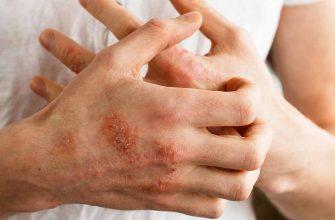 Атопический дерматит и экзема