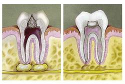Удаление зуба и нерва